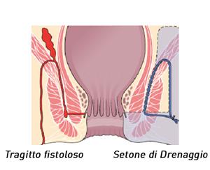Setone_di_drenaggio