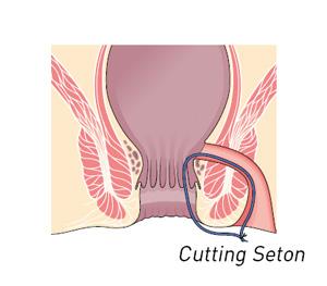 Setone_di_sezione
