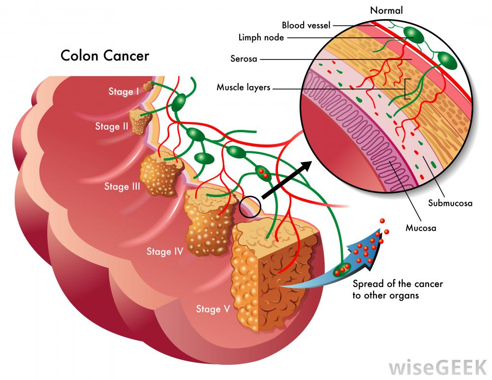 colon-cancer-depiction