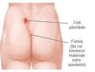 fistola_1